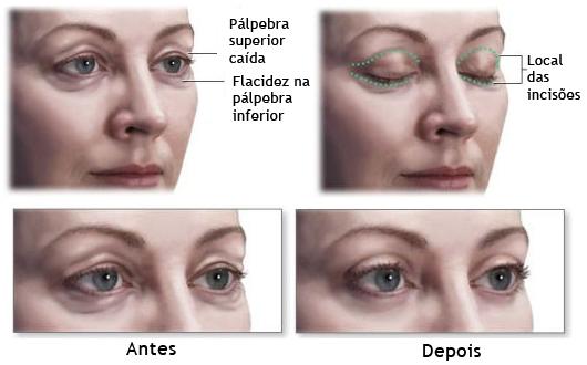 blefaroplastia-palpebra-olhos-caidos-ok